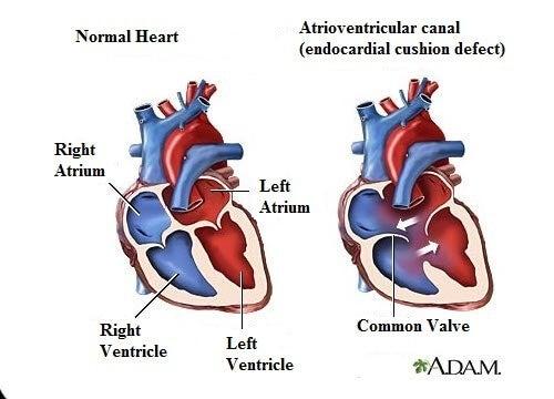 7 симптома на сърдечен шум, които трябва да знаете