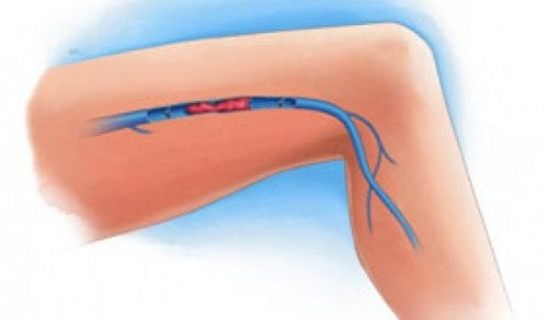 Симптоми на кръвен съсирек в крака