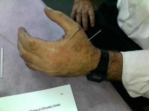 Акупунктурата помага при различни болежки, включително седалищна болка