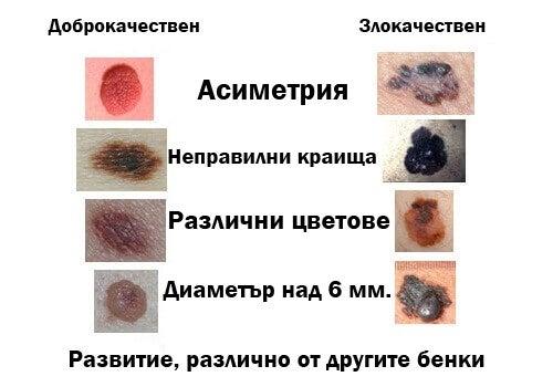 Признаци на рак на сожата.