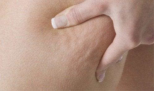 3 лечебни отвари за борба с целулита