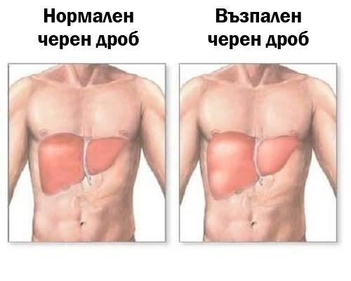 Възпалението на черния дроб: симптоми и диета