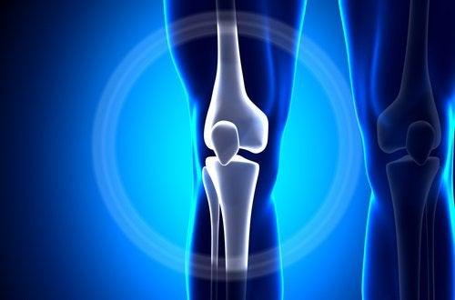 Симптомите при първичен рак на костите са характерни.