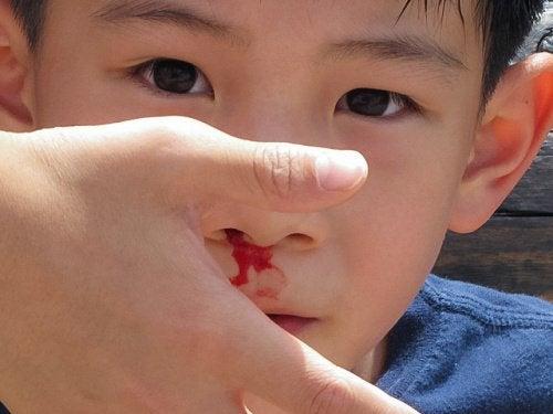 кръв от носа