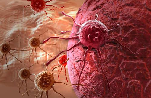 Една от важните ползи на джинзжифила  - бори се с рака