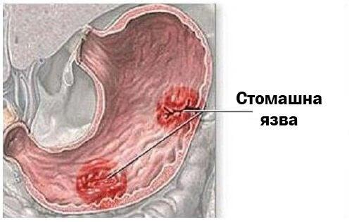 Симптоми на стомашна язва