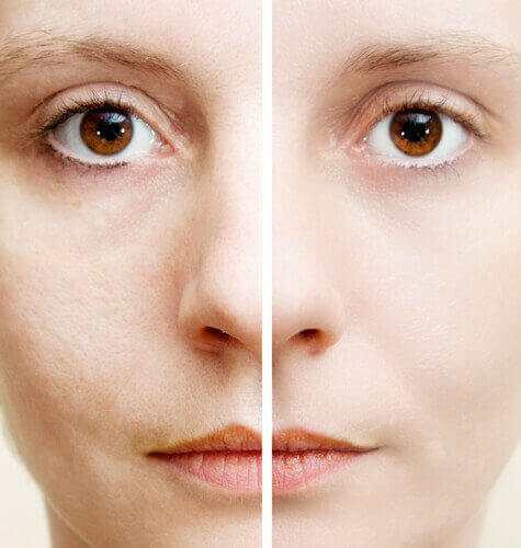 5 натурални съставки, премахващи тъмните петна