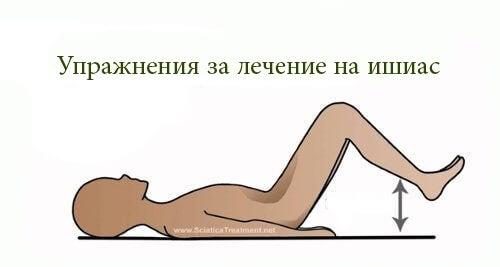 Най-добрите упражнения при възпален седалищен нерв