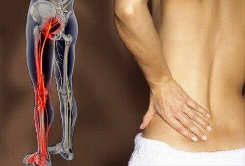 Болката при възпален седалищен нерв е изключително неприятна.
