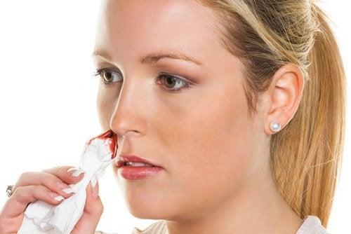 Натурални средства при кръвотечение от носа