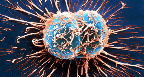 11 симптома на рак, които често пренебрегваме