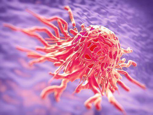 Излагането на радиация повишава риска от развитие на рак на гърдата.