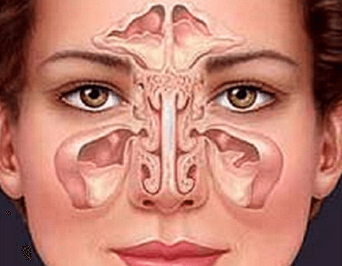 Лечение на синузит по естествен начин