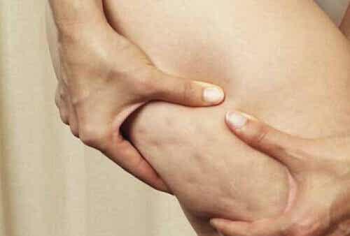 7 храни, които предизвикват появата на целулит