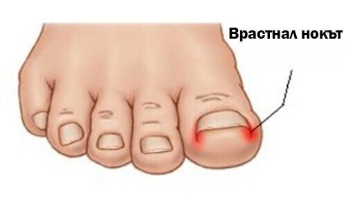 Съвети за лекуване на врастналите нокти на краката