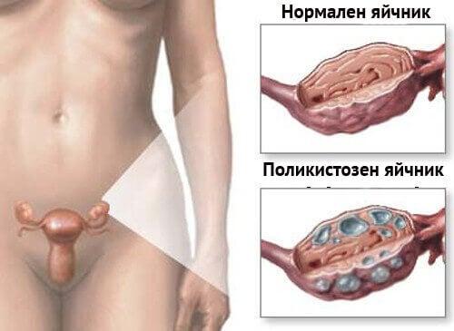 Натурални лекарства за синдром на поликистозни яйчници