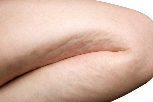6 упражнения за ефективна борба с целулита