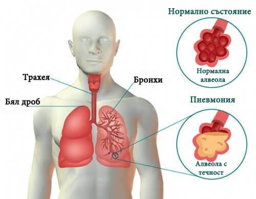 Симптоми на пневмония и средства за лечение