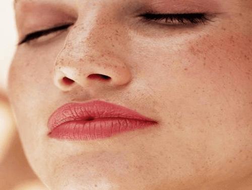 Луничките и петната по кожата обикновено се определят като естетичен проблем