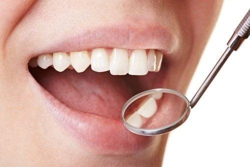 Как лесно да отстраним плаката по зъбите
