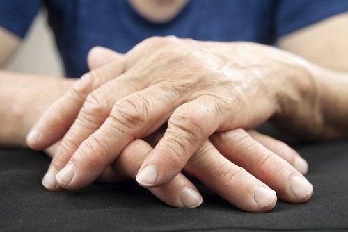 Връзка между чревните бактерии и ставните болки