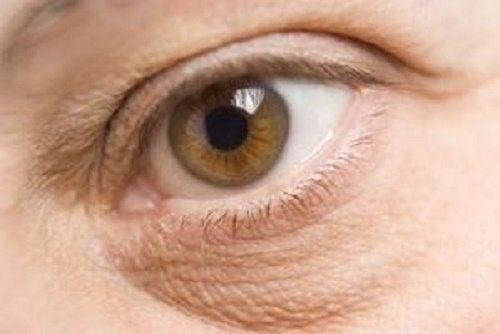 Натурални лечения за тъмните кръгове под очите