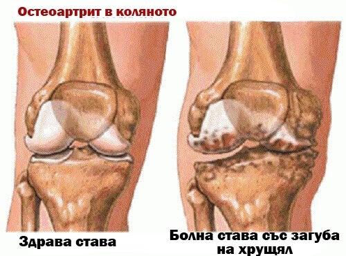 остеоартрит в коляното