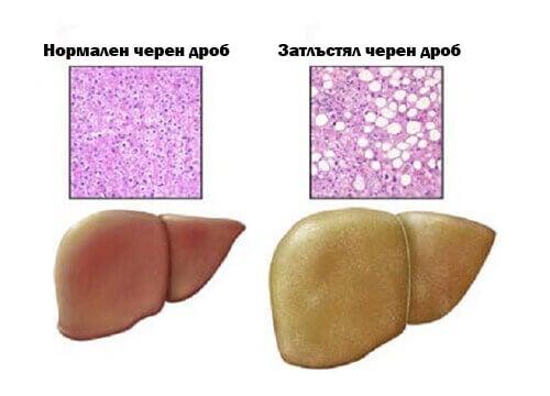 Разлика между нормален и мастен черен дроб.