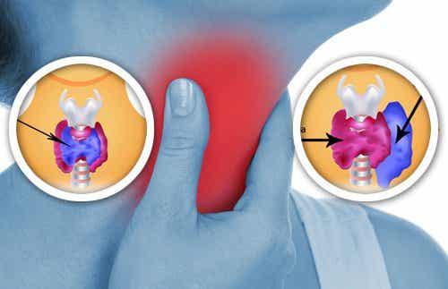 8 продукта от бита, които влияят на щитовидната жлеза