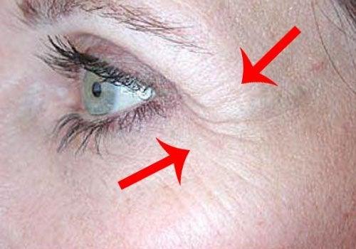 Причини за и лечение на бръчките тип пачи крак