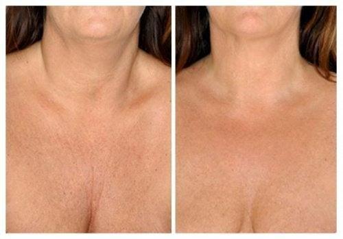 Топ натурални средства за кожата на шията