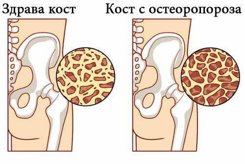 8 храни, които помагат за предотвратяване на остеопорозата
