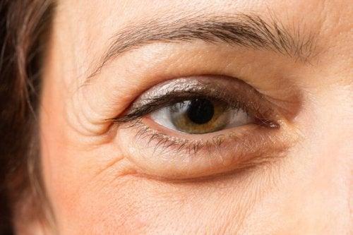 здравето на очите и подутите клепачи