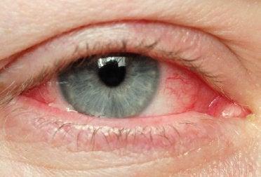 здравето на очите е важно