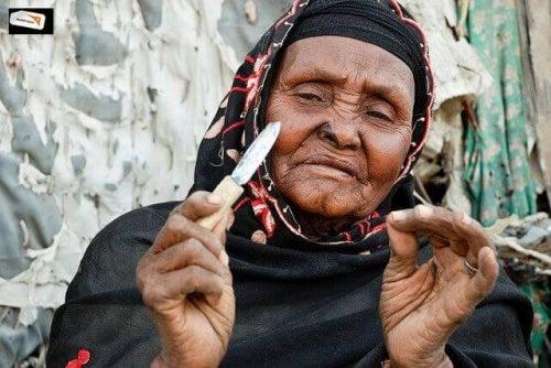 увреждане на женските гениталии при обрязване на клитора