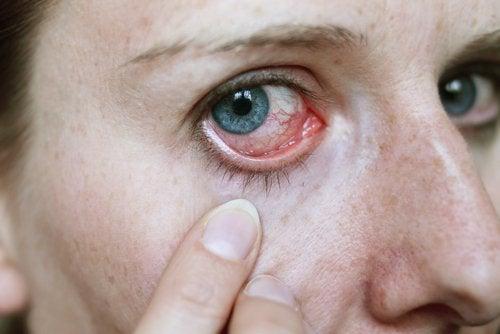 здравето на очите - зачервени и воднисти очи