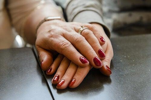 премахване на петна и лунички по ръцете