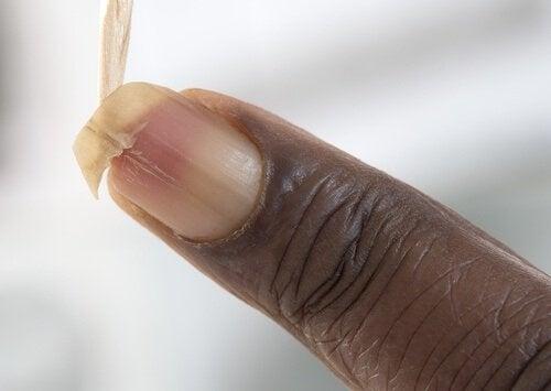 Укрепване на чупливите нокти