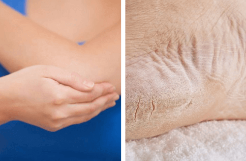 Лечение на сухи крака и лакти за 1 седмица