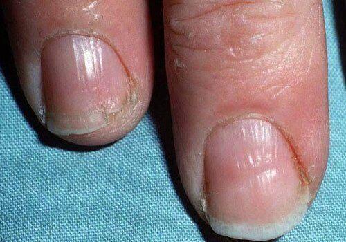 2-chuplivi-nokti