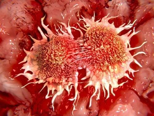 Екстракт или масло от лимон има лечебни свойства срещу туморите.