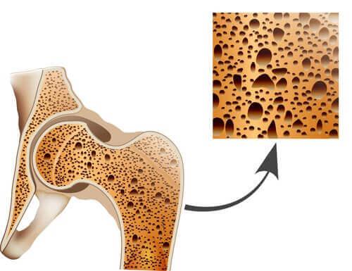 Гравиолата се грижи за костите и предпазва от остеопороза