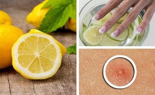 6 начина, по които лимоните ще ви направят по-красиви