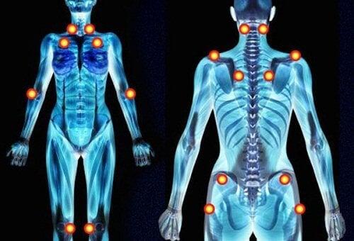 Ако болката в ръцете и краката е непрекъсната, може би имате фибромиалгия.