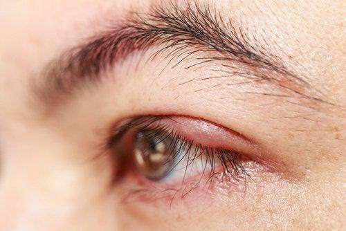 Рициновото масло помага и при ечемик на окото