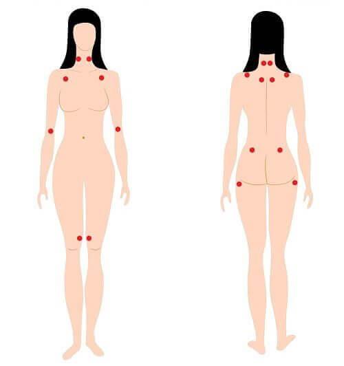 болката в ставите и мускулите е сред ярките ранни симптоми на фибромиалгията