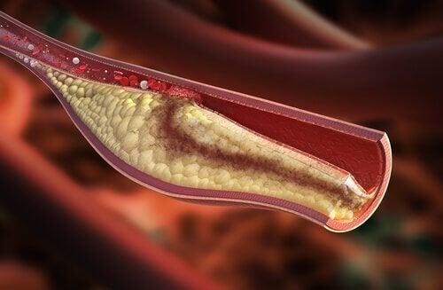 Как да разберете,че холестеролът ви е висок?