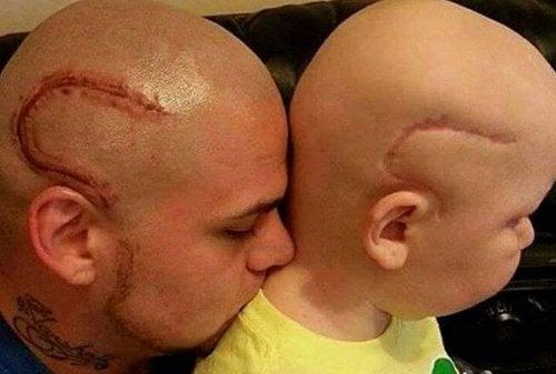 Баща прави татуировка като белега от операция на рак на сина си