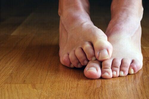 Съвети за премахване на мазолите по краката