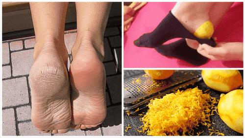 Използвайте лимонови кори, за да излекувате стъпалата